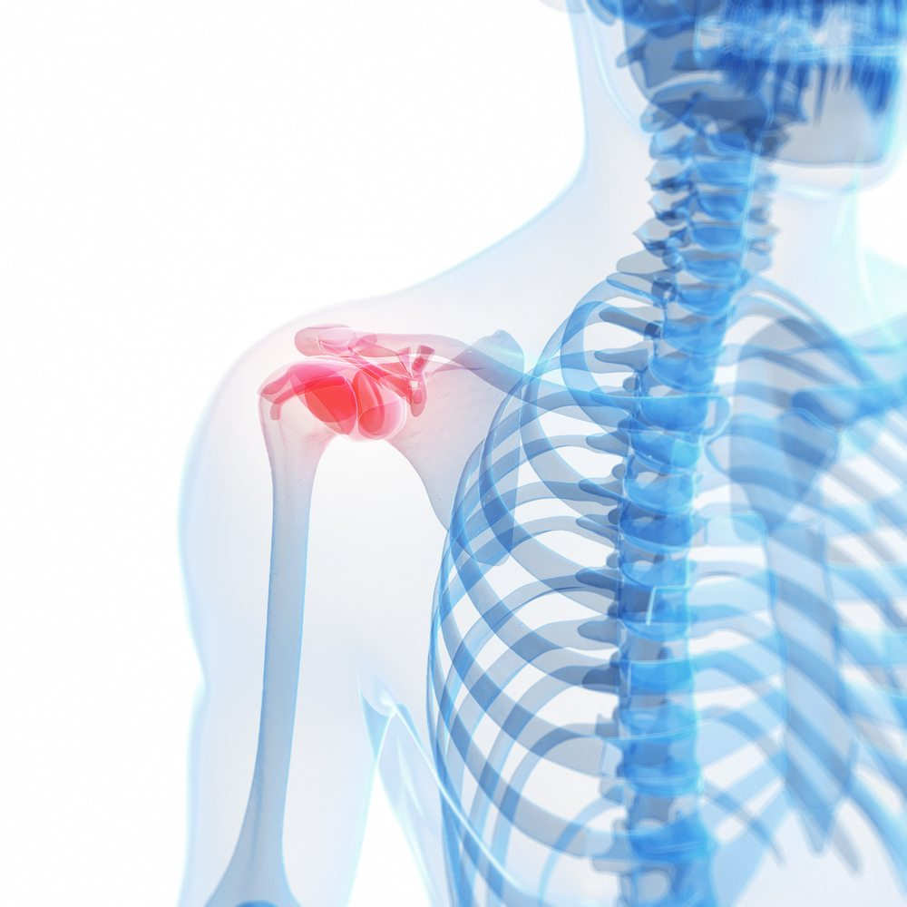 how to help torn rotator cuff