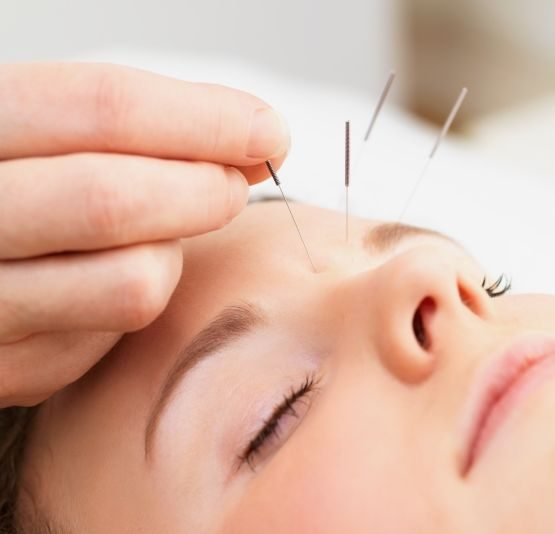 acupuncture as a valid medical technique 4 diagnostic methods in joondalup acupuncture loading in 2 seconds 1 / 2 download presentation 4 diagnostic methods in joondalup acupuncture .